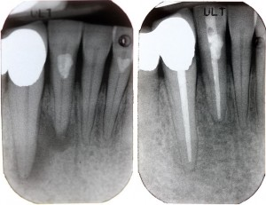 Endodontie Zahnwurzelkanalbehanlung - Zahnarzt Dorsten