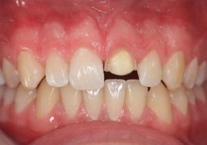 Frontzahn abgebrochen - Zahnarztpraxis Dorsten