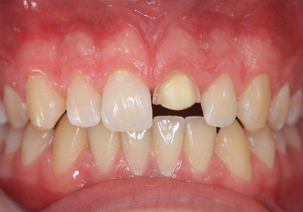 Zahnrekonstruktion | Zahnarztpraxis in Dorsten