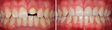 Frontzahnkrone, abgebrochener Zahn - Zahnarzt Dorsten