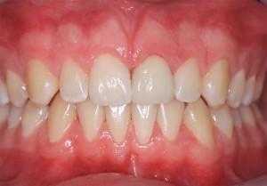 Frontzahnkrone Dentinadhäsive Klebetechnik - Zahnarztpraxis Dorsten