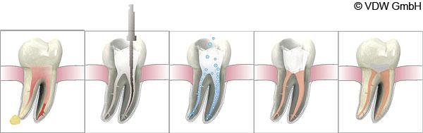 Wurzelkanalbehandlung Schritte - Endodontie Zahnarzt Dorsten