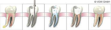 Zahnwurzelkanalbehadnlung / Endodontie - Zahnarzt Dorsten