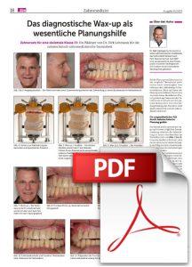 PDF-Das diagnostische Wax-up als wesentliche Planungshilfe