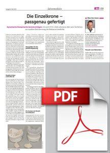 PDF Die Einzelkrone – passgenau gefertigt